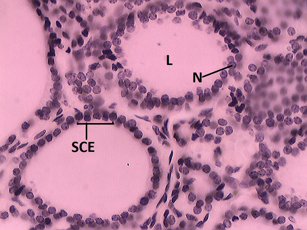 Simple Cuboidal Epithelium Thyroid Gland 40x Histology