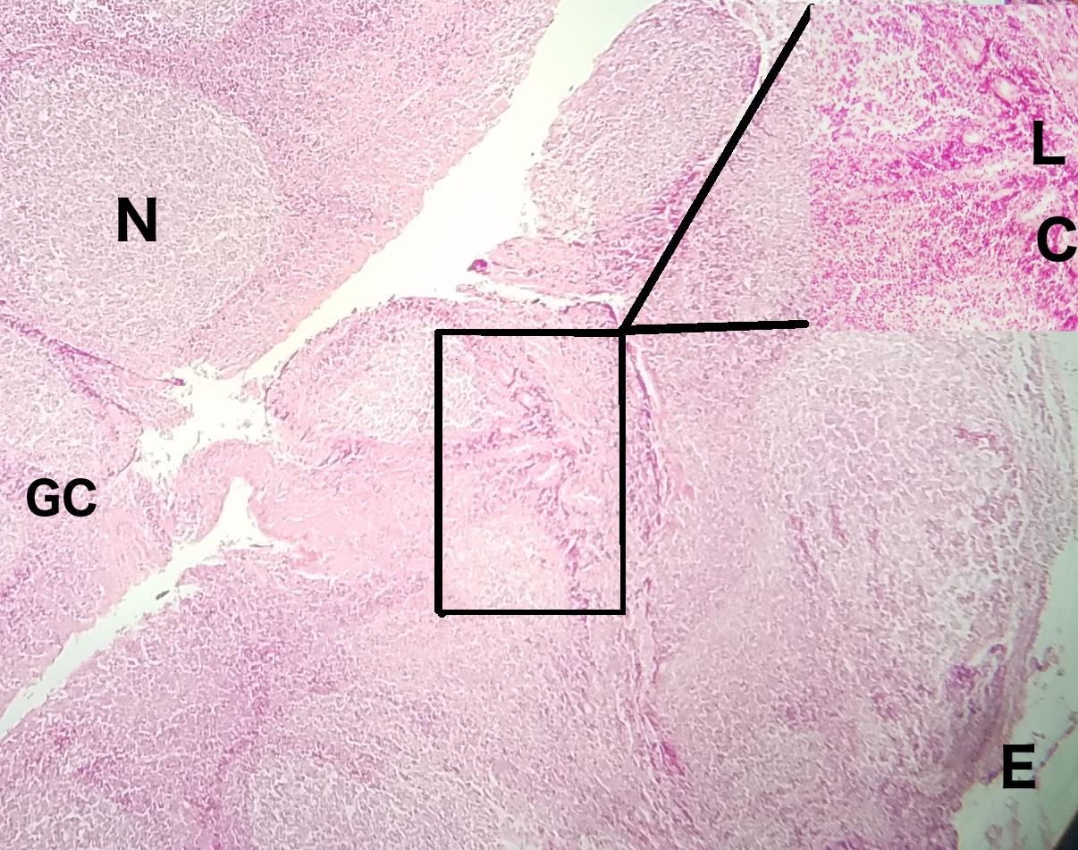 Palatine Tonsil 10x Histology