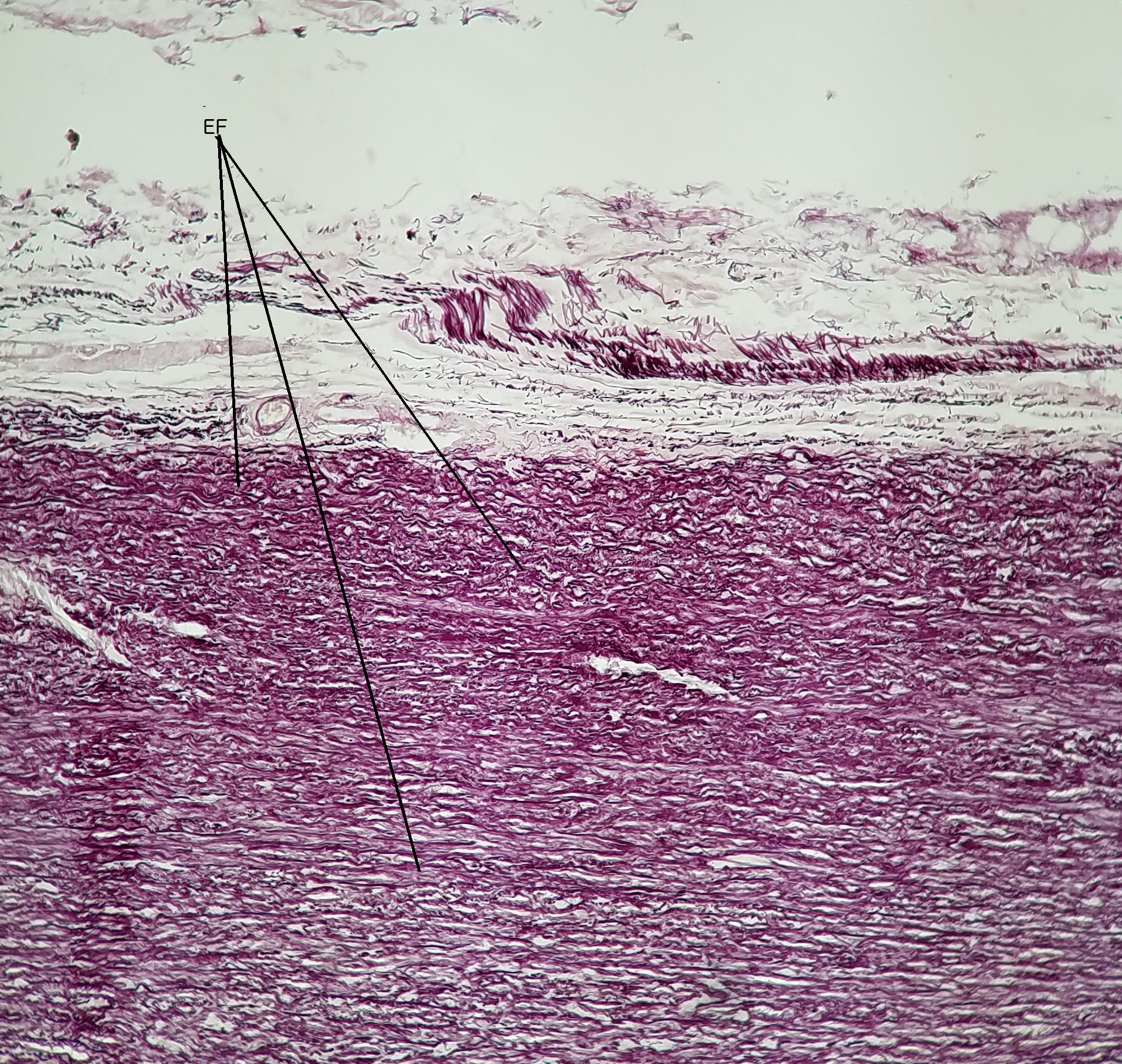 Lab 3 Connective Tissue Histology