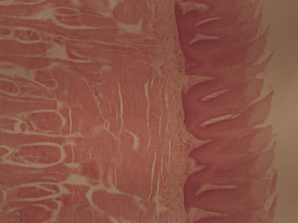 Tongue Fungiform Papillae 4x010 Histology